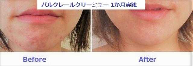 ニキビ (2).jpg